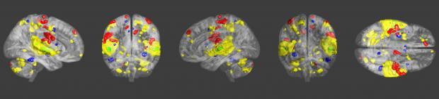 Gehirnaktivität bei Musik